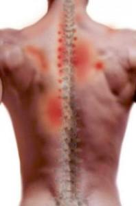 Brystryggsmerter / smerter mellom skulderblad